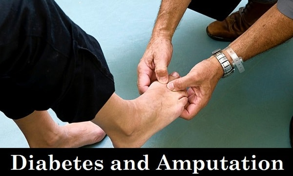 Diabetes and Amputation
