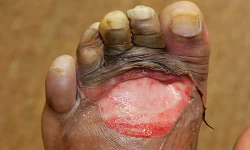Bullosis Diabeticorum or Diabetic Bullae