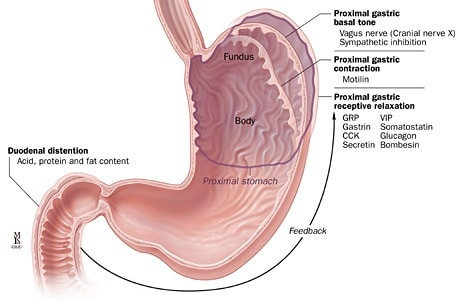How to Treat Diabetic Gastroparesis (with Pictures) - wikiHow |Poss Diabetic Gastroparesis